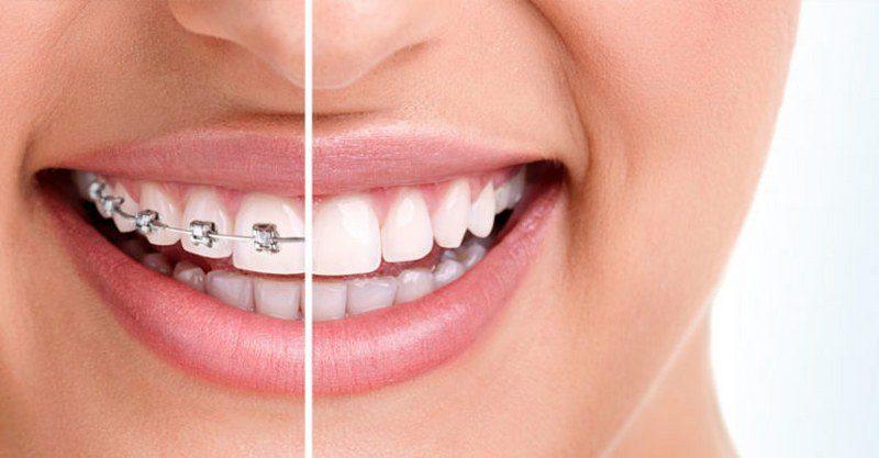 ortodonzia-trattamenti-768x400_800x417
